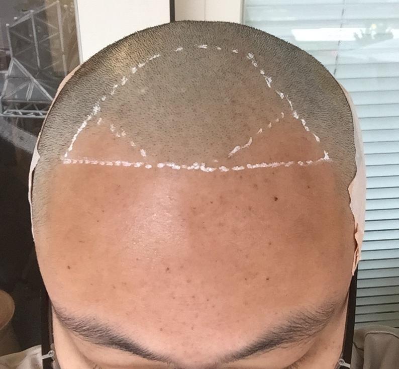 M型禿植髮案例FUE高密度植髮ptt心得推薦-植髮專家澤林毛髮診所謝宗廷醫師-合併使用柔沛-術前2-1