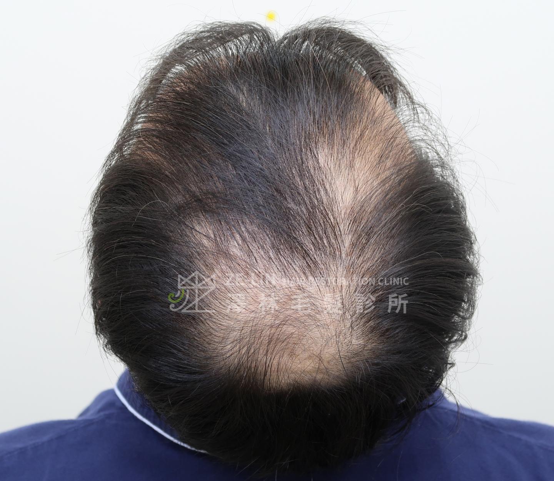 頂部植髮改善頭皮被看見的困擾-術前