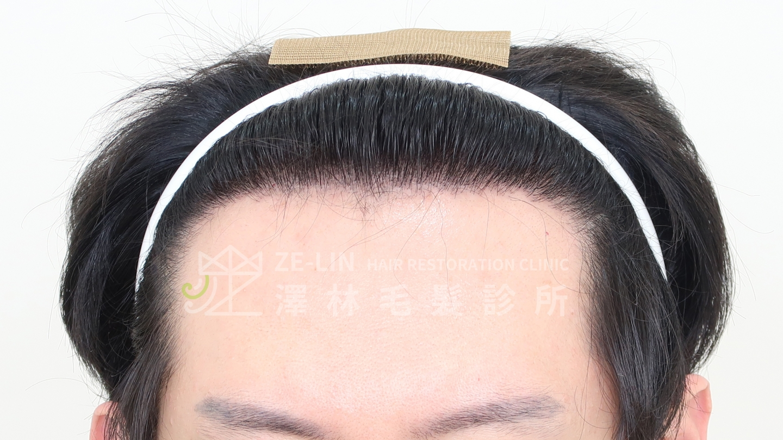 M型禿植髮案例FUE高密度植髮心得推薦-植髮專家澤林毛髮診所謝宗廷醫師-雄性禿治療(柔沛+落健水溶液)-術後5-1