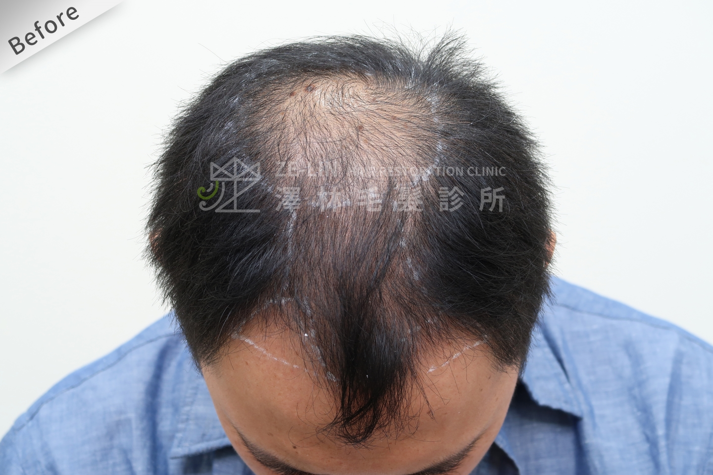 巨量植髮手術前(FUT+FUE植髮手術)頂部
