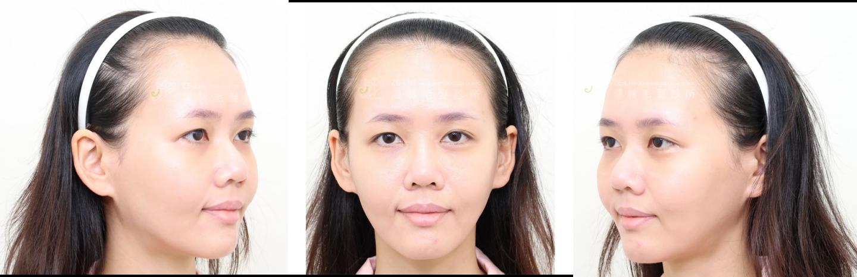 女性植髮改善高額頭困擾
