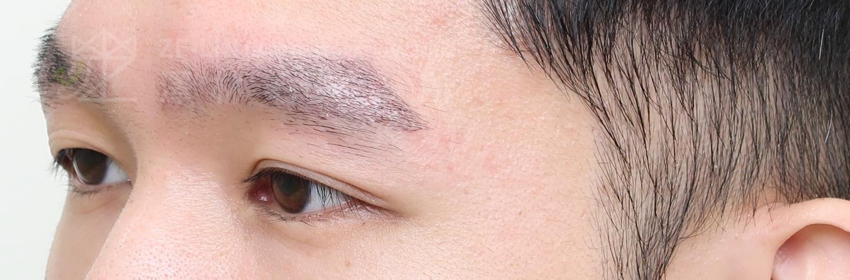 謝宗廷醫師植眉手術改善眉尾稀疏眉毛較短案例術後2