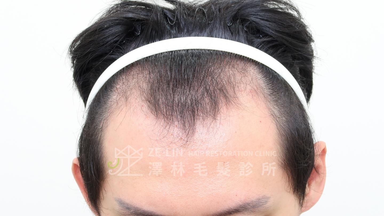 M型禿植髮案例FUE高密度植髮心得推薦-植髮專家澤林毛髮診所謝宗廷醫師-雄性禿治療(柔沛+落健水溶液)-術前5-1