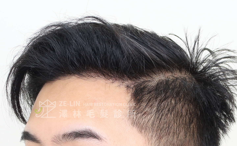 M型禿植髮FUE高密度植髮心得推薦-植髮專家澤林毛髮診所謝宗廷醫師-合併使用柔沛-術後3-2