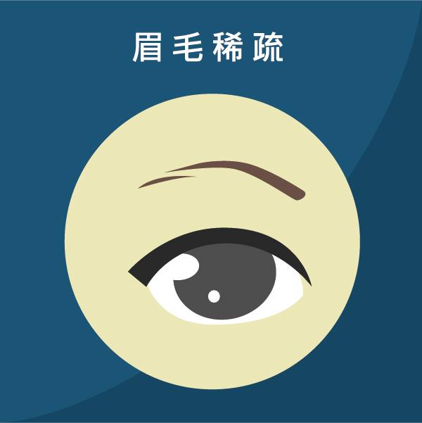 植眉手術解決眉毛稀疏的問題
