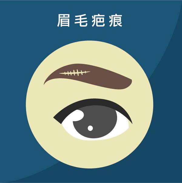 植眉手術改善眉毛疤痕或斷眉問題