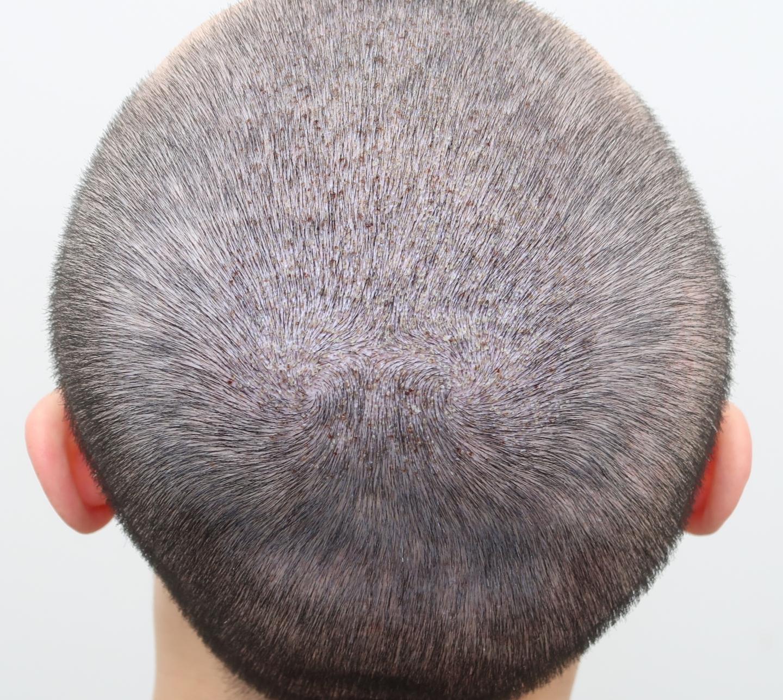 澤林毛髮診所頂部植髮手術5900根術後兩周