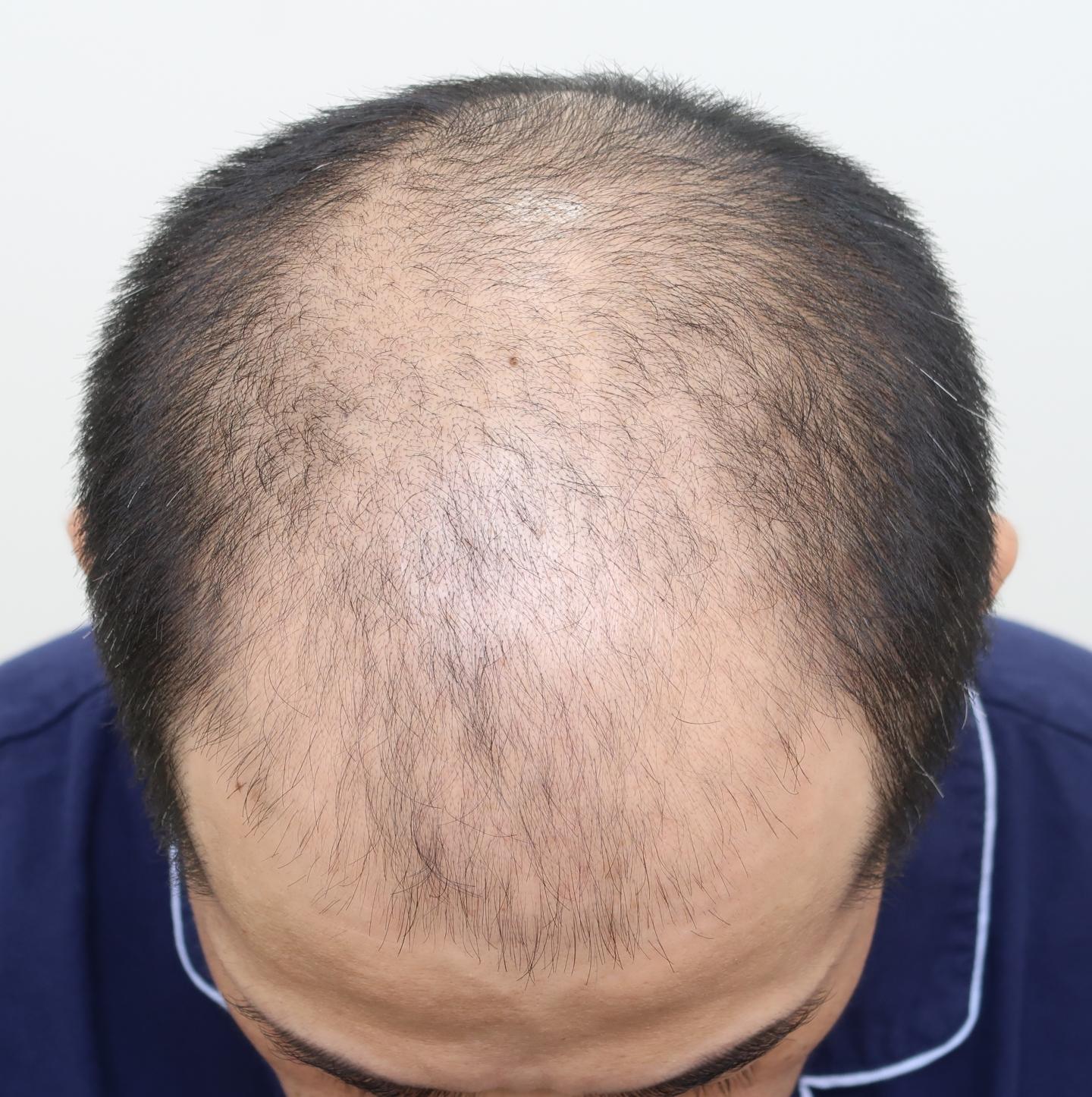 巨量植髮手術前(FUE植髮手術)頂部3