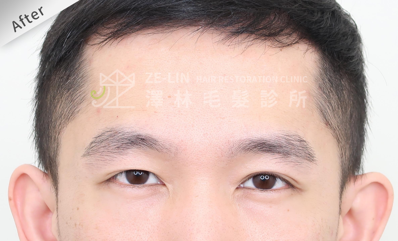 植眉手術改善斷眉術後