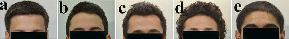 男生髮際線植髮設計