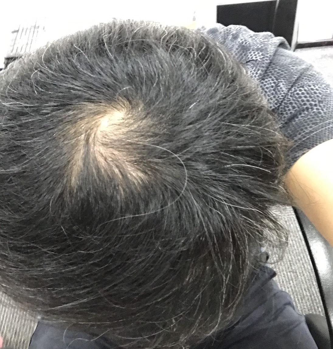 頂部髮量稀疏接受植髮手術前