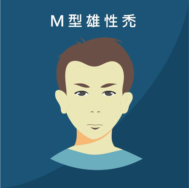 雄性禿m型禿植髮