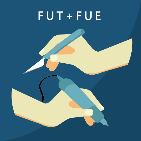 巨量植髮合併FUT及FUE植髮手術