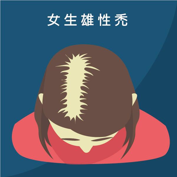 女生雄性禿或是分髮線變寬