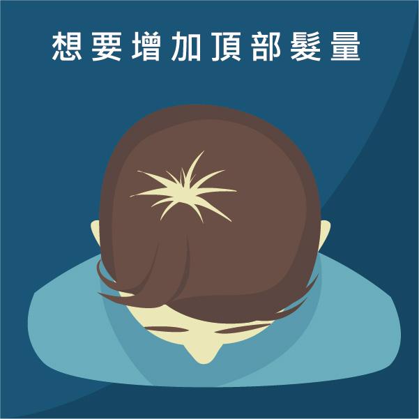 頂部髮量稀少或是頂部看到頭皮
