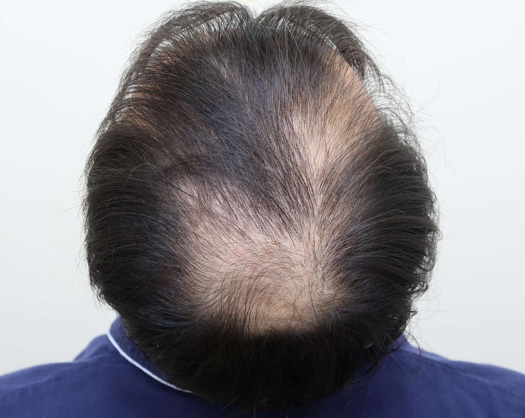 男性雄性禿初期徵兆:髮旋