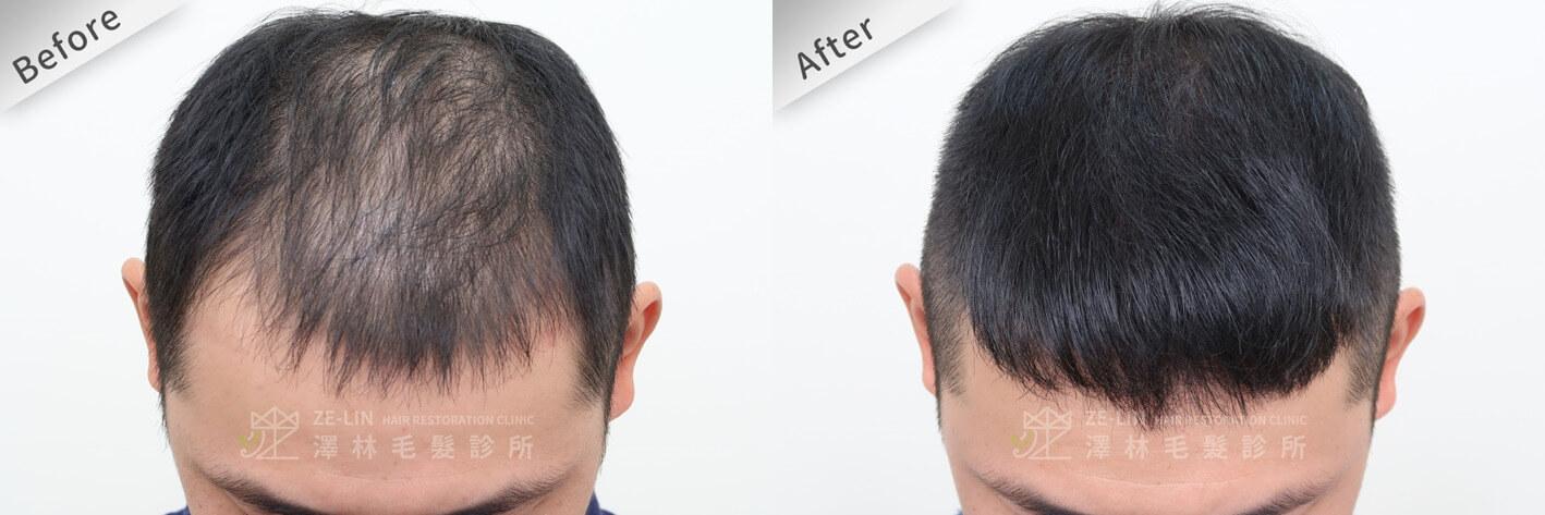 雄性禿治療前後比對