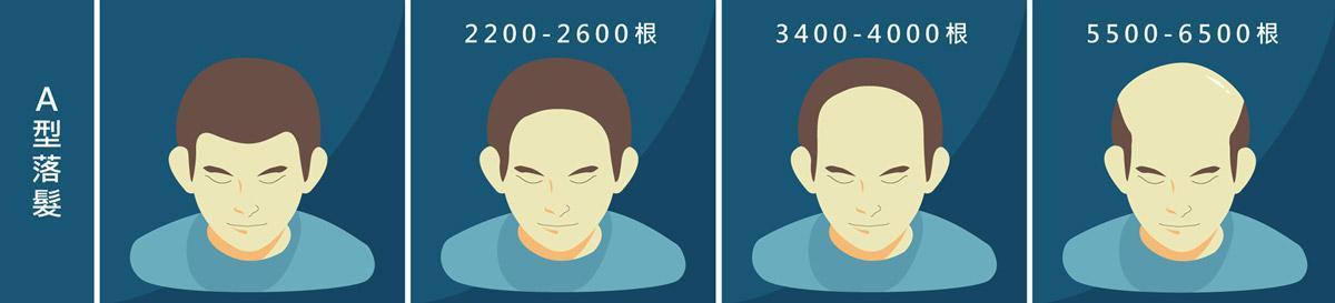 植髮心得:A型落髮所需頭髮根數