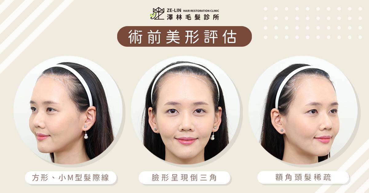 高額頭女生髮際線植髮案例推薦(術前)
