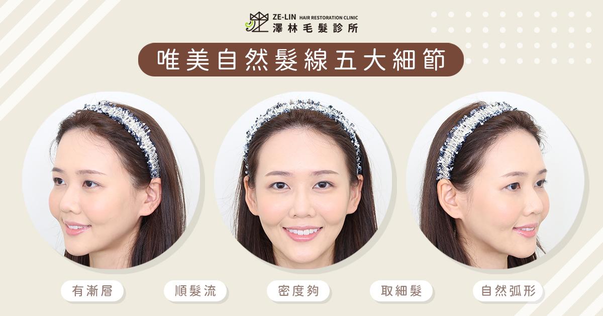高額頭女生髮際線植髮案例推薦(術後)