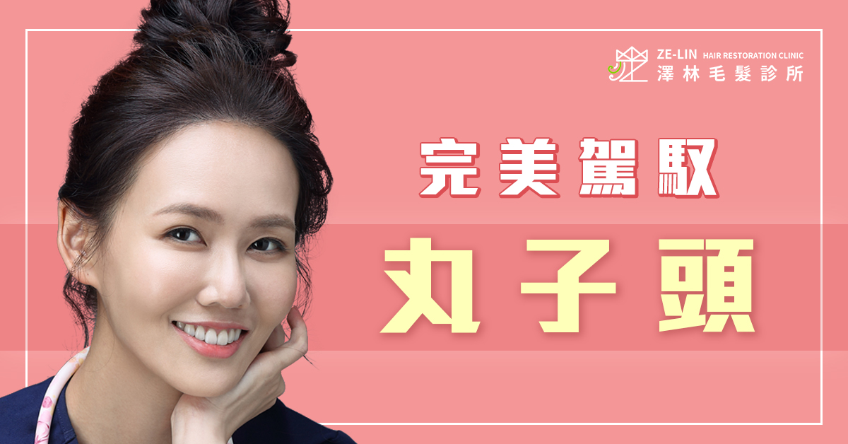 澤林植髮診所謝宗廷醫師高額頭女生髮際線植髮案例分享