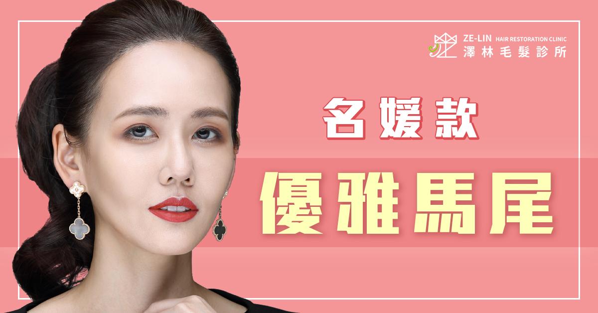 澤林植髮診所謝宗廷醫師高額頭女生髮際線植髮案例推薦