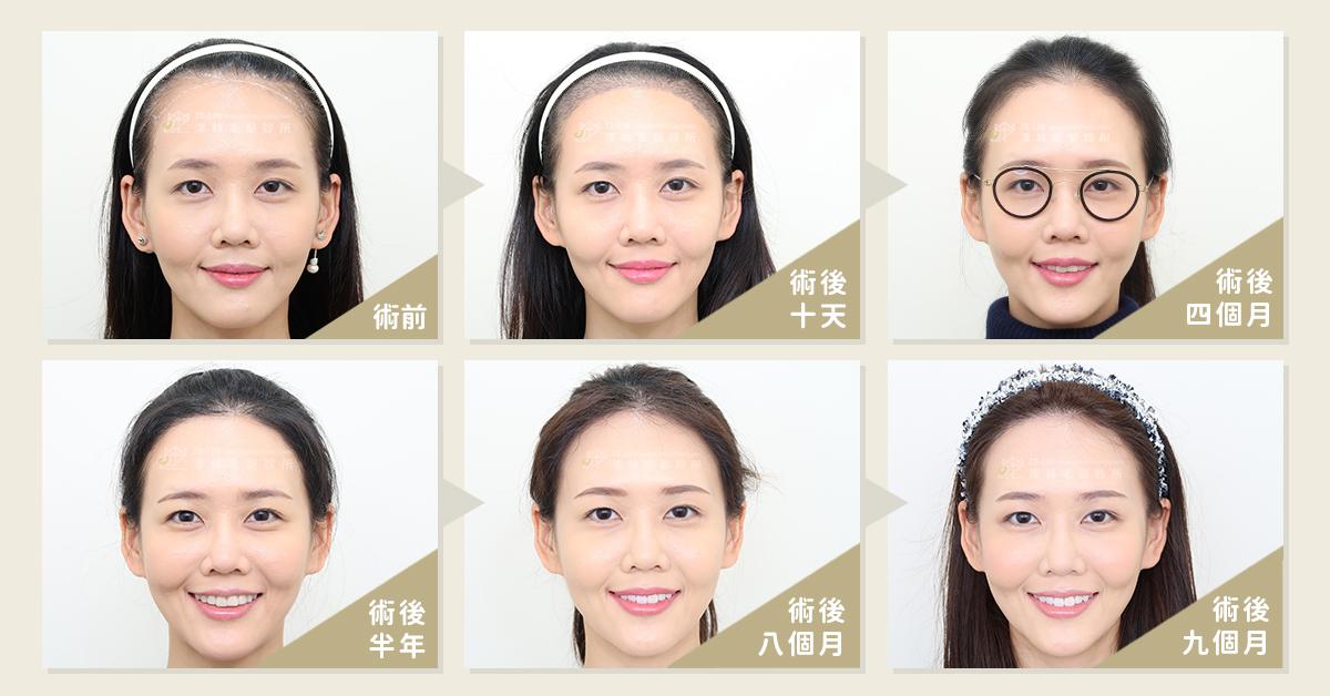 高額頭女生髮際線植髮案例推薦(術後一年追蹤)