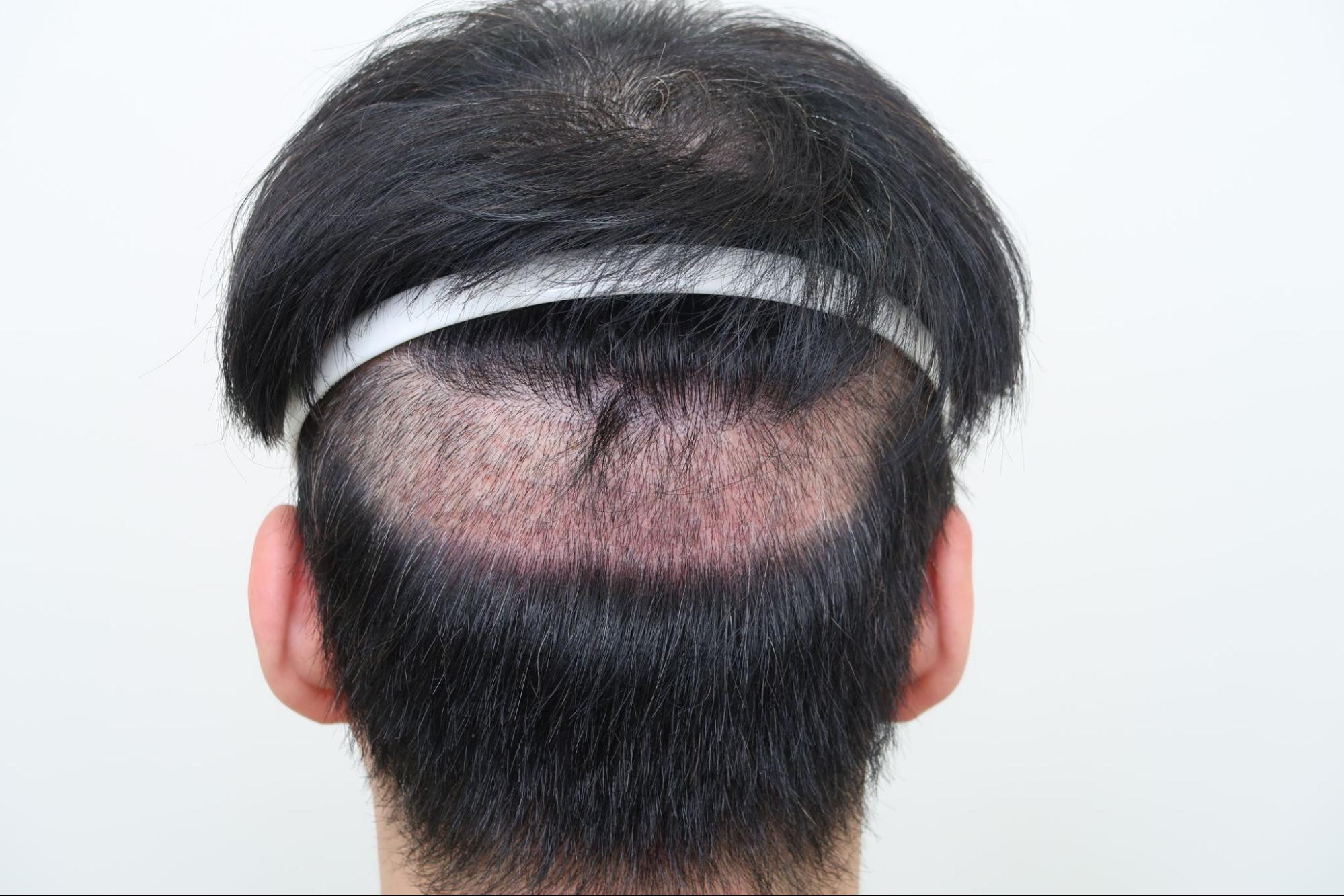 分層剃髮FUE遮蓋剃髮部位