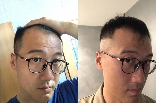 M型禿植髮前