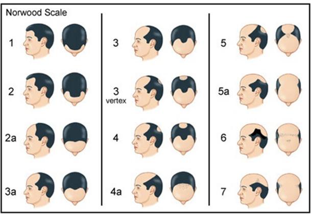 掉髮:男生雄性禿分期