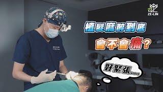 謝宗廷醫師講解植髮麻醉
