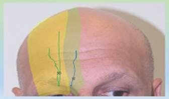謝宗廷醫師講解植髮局部麻醉安全性