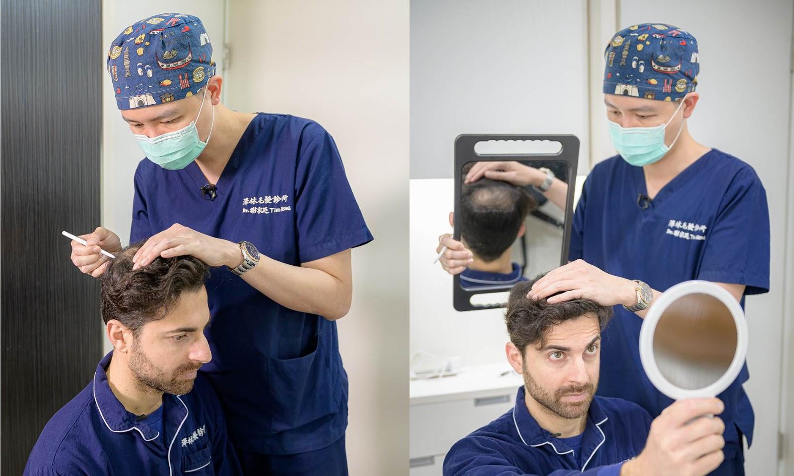 植髮手術|謝宗廷醫師|醫師親自諮詢評估