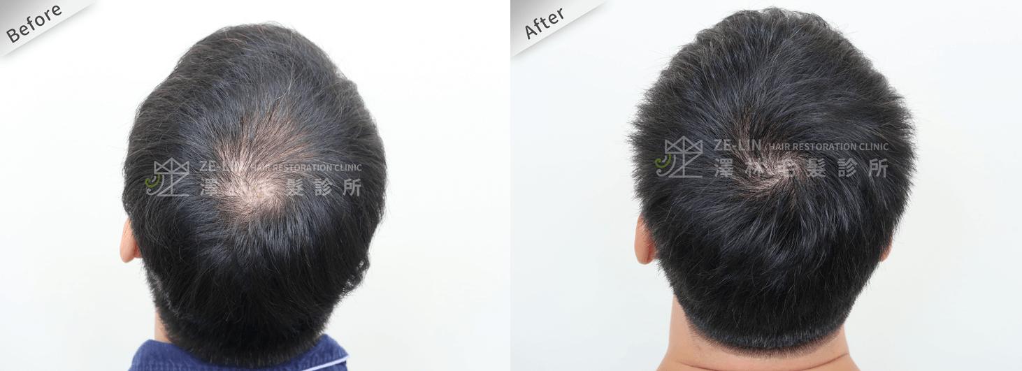 植髮推薦:頂部植髮手術所需時間案例分享
