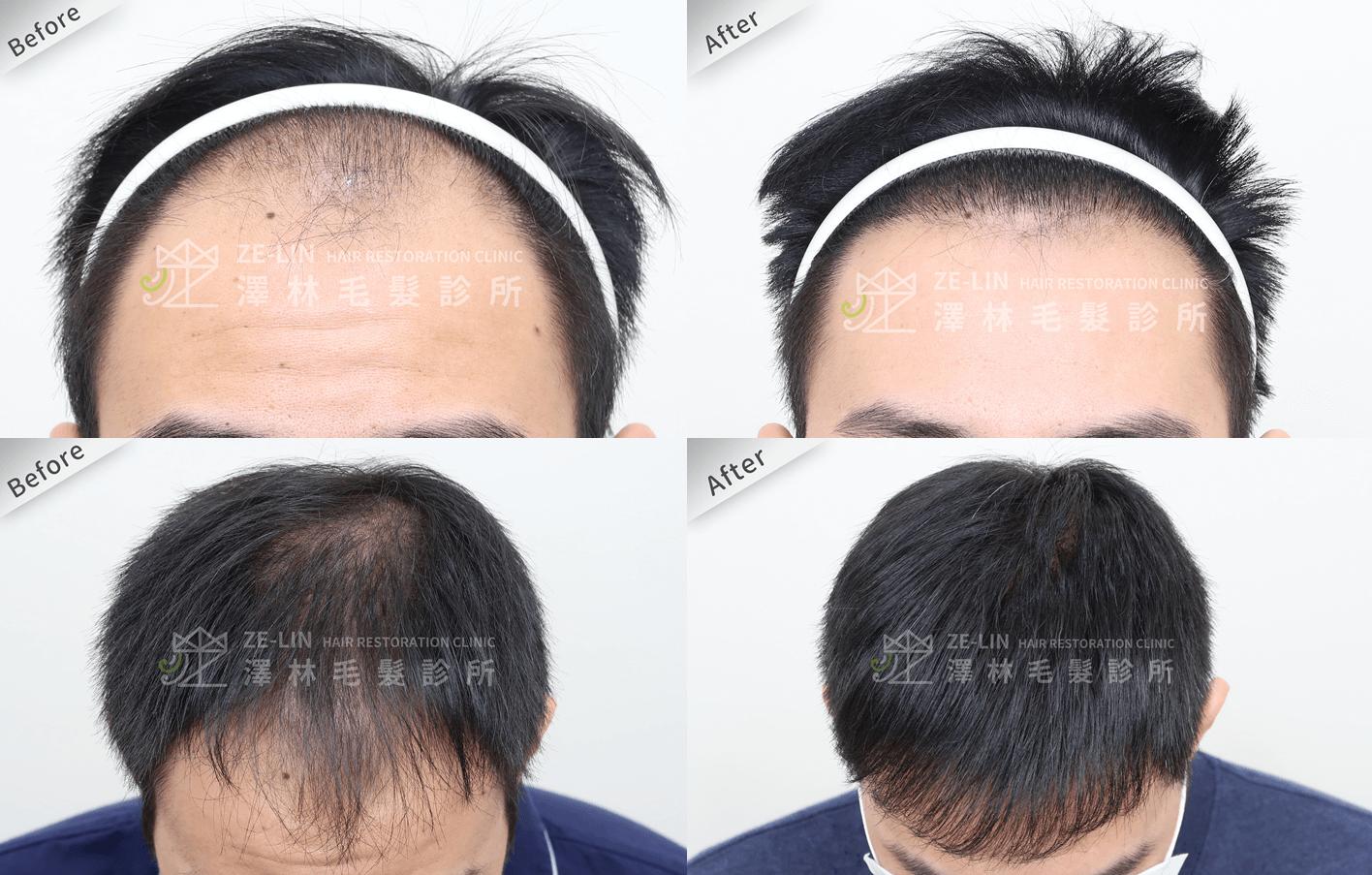 植髮推薦:前額及頂部植髮手術所需時間案例分享 第五期雄性禿