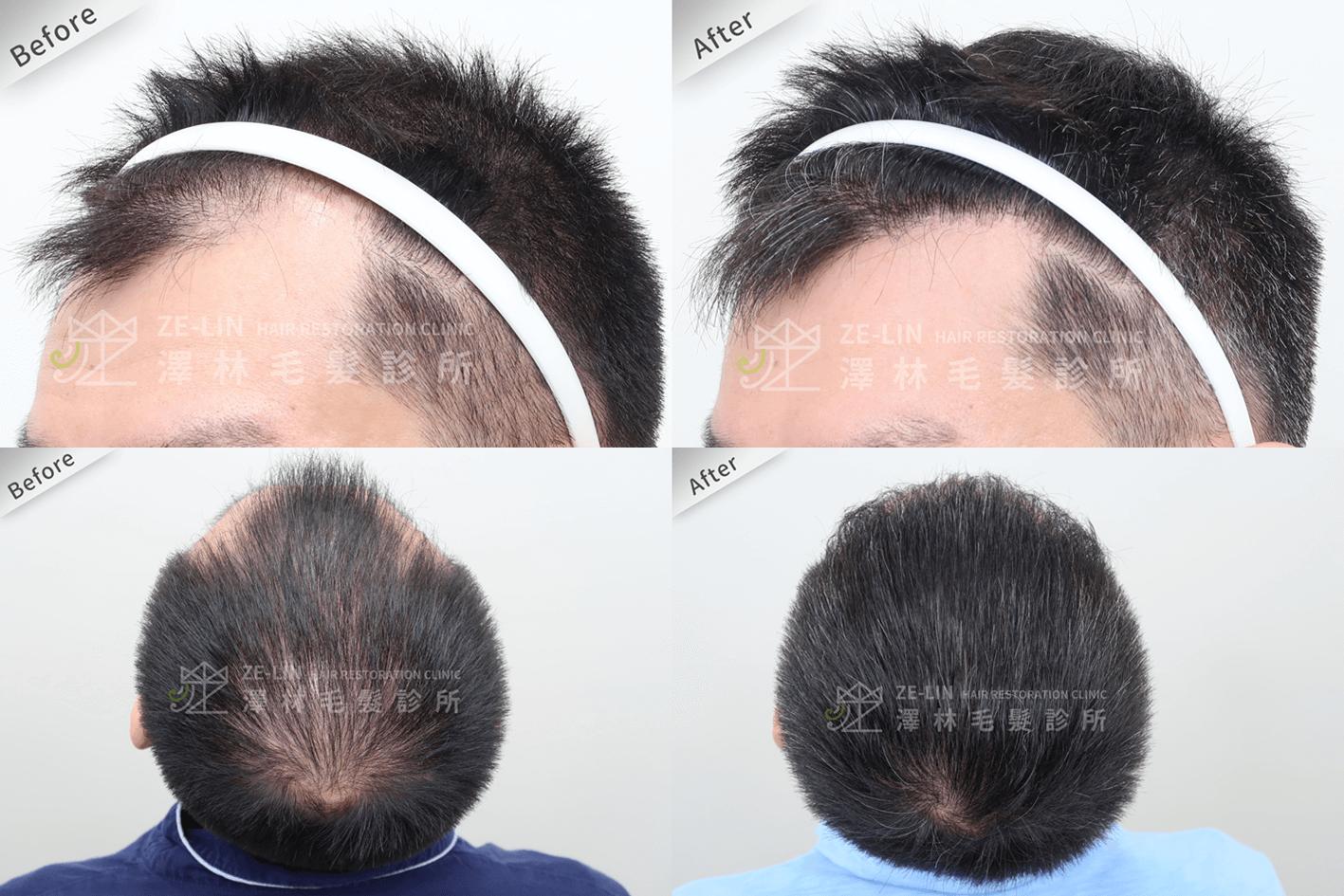 植髮推薦:前額及頂部植髮手術所需時間案例分享