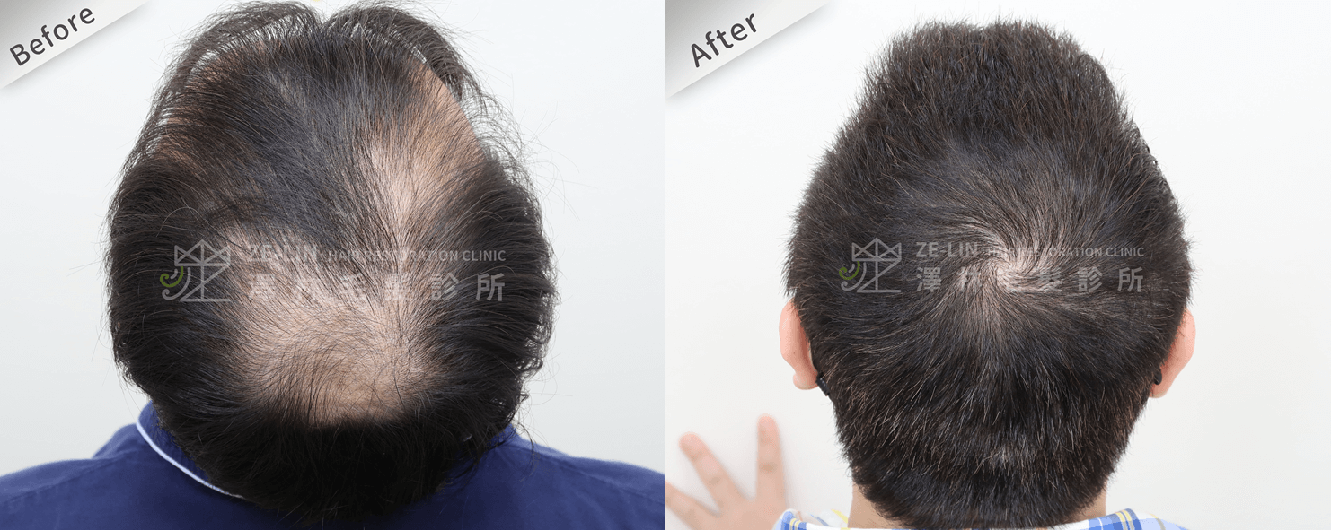 植髮推薦:M型前額及頂部植髮手術所需時間案例分享 巨量植髮