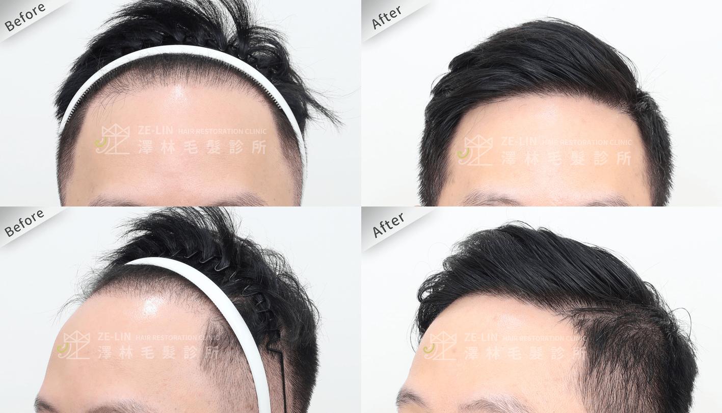 植髮推薦:M型髮際線植髮手術所需時間案例分享