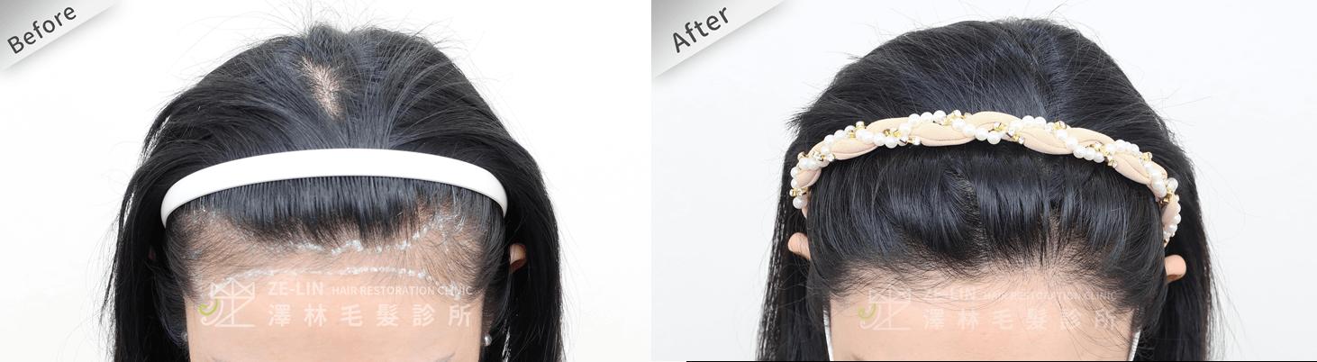 植髮推薦:女生高額頭髮際線美型植髮手術所需時間案例分享