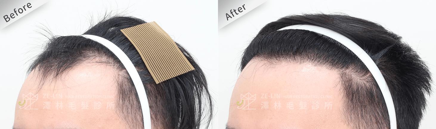 植髮推薦:M型髮際線及前額植髮手術所需時間案例分享(側面)