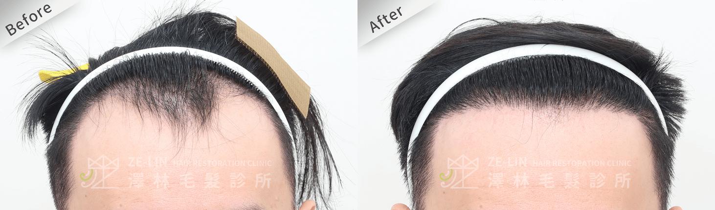 植髮推薦:M型髮際線及前額植髮手術所需時間案例分享(正面)