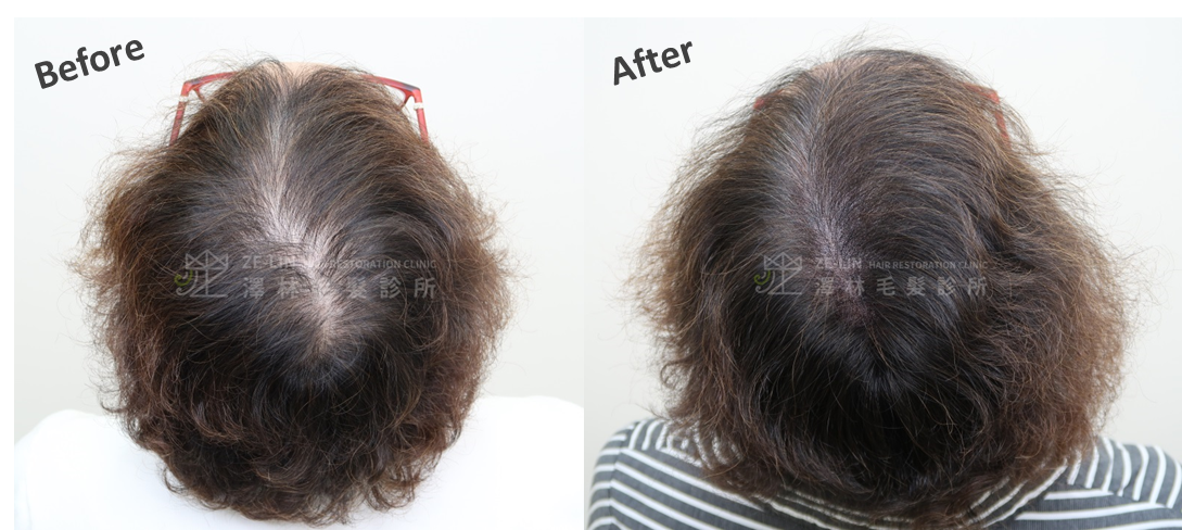 掉髮治療:SMP
