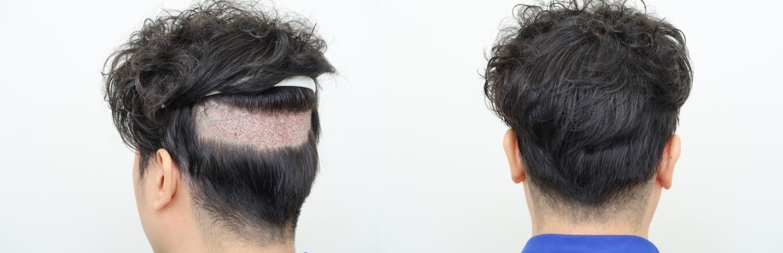 除了免剃髮FUE,可考慮分層剃髮