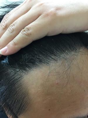 植髮推薦應注意毛流方向