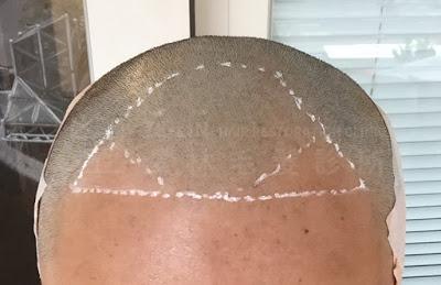植髮推薦術前評估