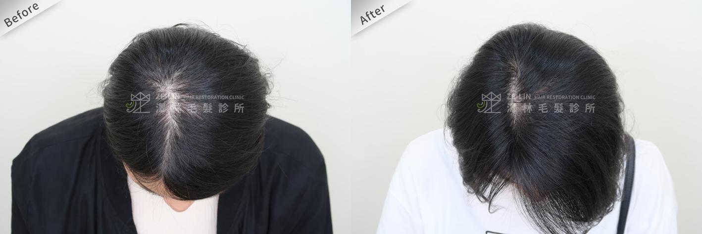 掉髮治療:自體育髮