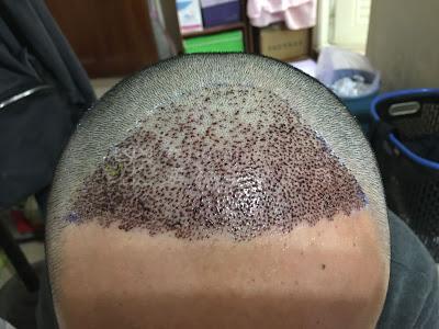 植髮推薦術後保養服務