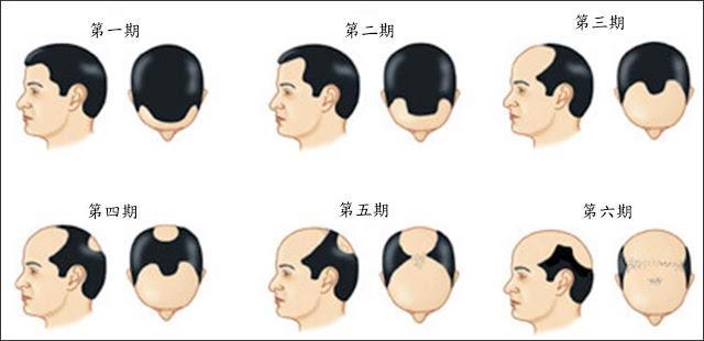 M型禿治療根據不同落髮階段