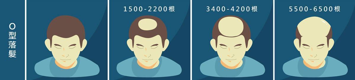 植髮心得:O型落髮所需頭髮根數