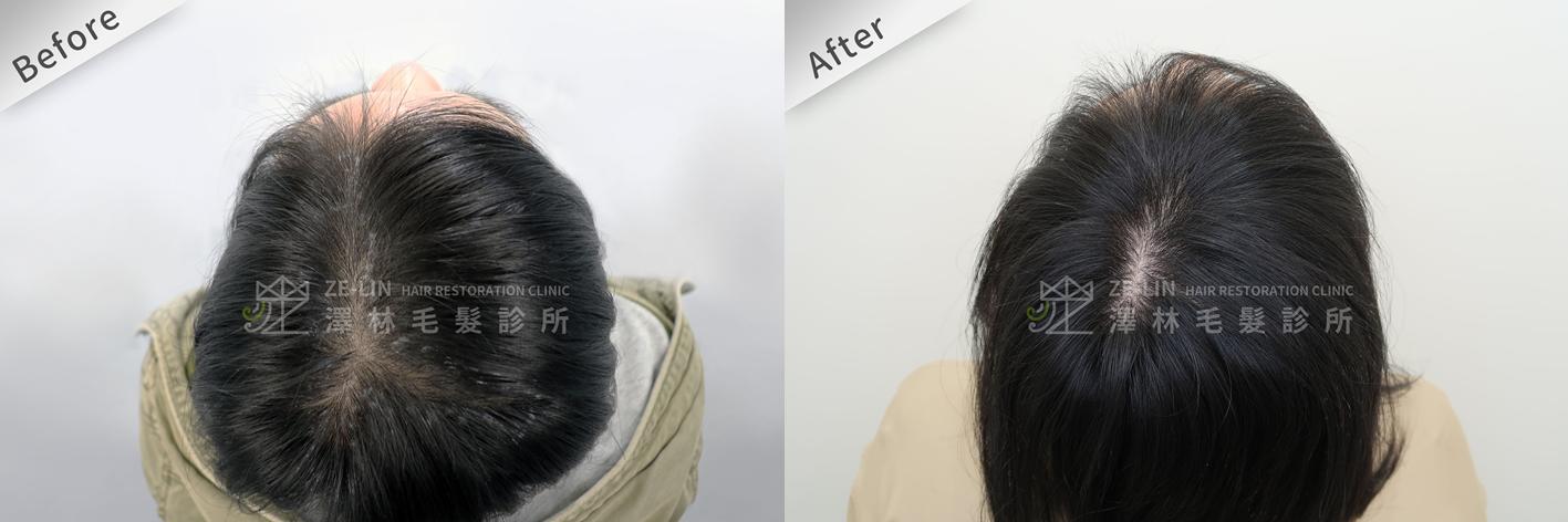 掉髮治療:FUE植髮
